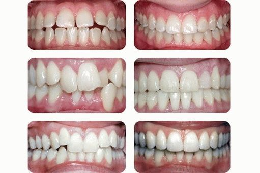 Фото до и после лечения керамическими брекетами