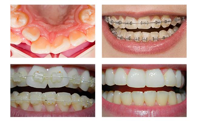 Лечение керамическими брекетами, фото до и после
