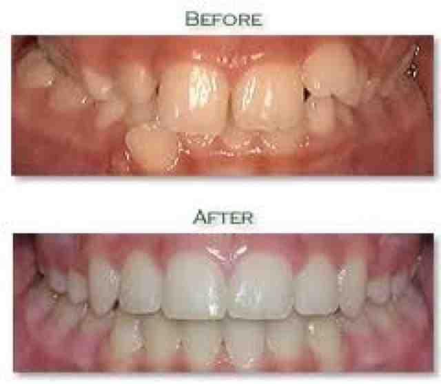 Пример до и после лечения с помощью пластиковых брекетов