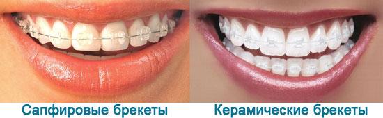 Сравнение, как выглядят керамические и сапфировые брекеты на зубах