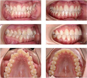 ispravlenie zubov bez breketov