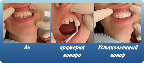 viniri-primer-do-i-posle